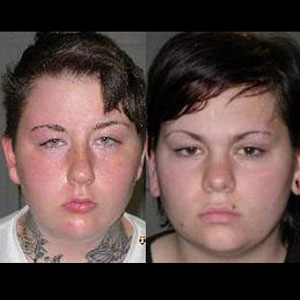 Lesbian Couple Admits to Strangling and Burying Ex Alive